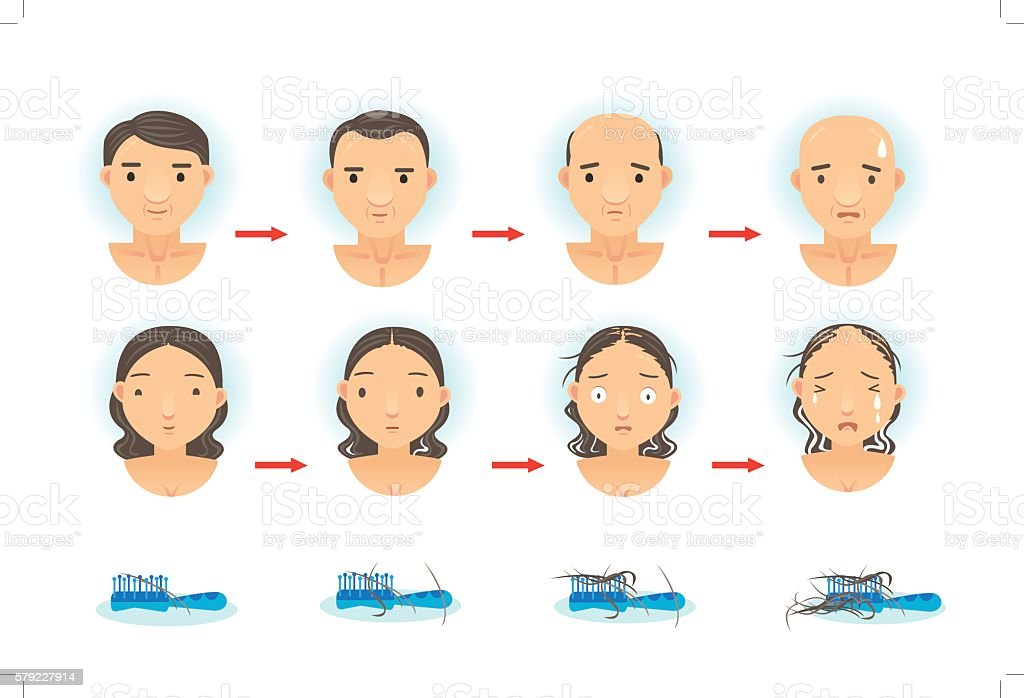 Hair Loss vector art illustration