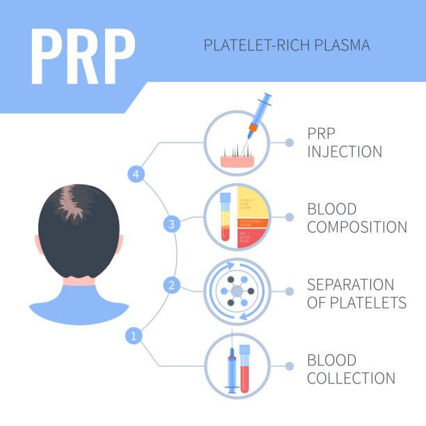 ilustrações, clipart, desenhos animados e ícones de infográficos da terapia do rebrota do cabelo de prp para mulheres - tratamentos de beleza