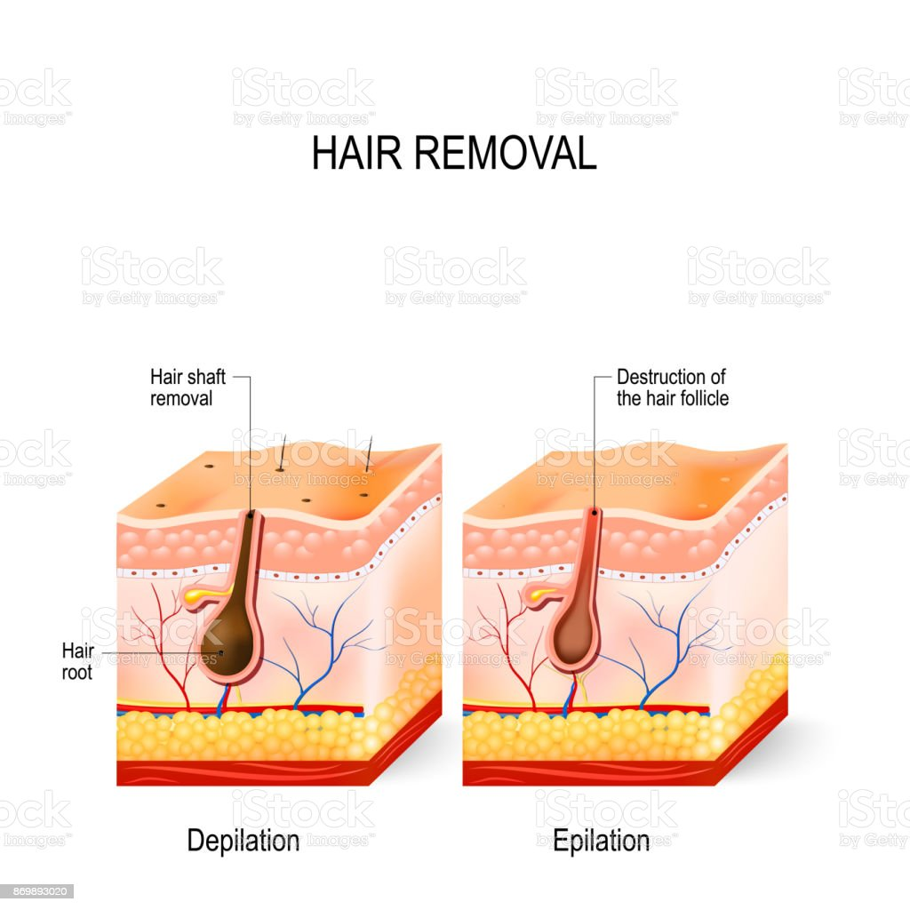 Hair Removal Epilation And Depilation Stock Vector Art More Images