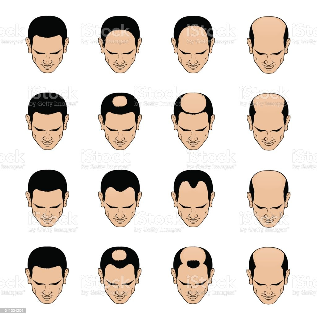 Hairl loss patterns and stages for men vector art illustration