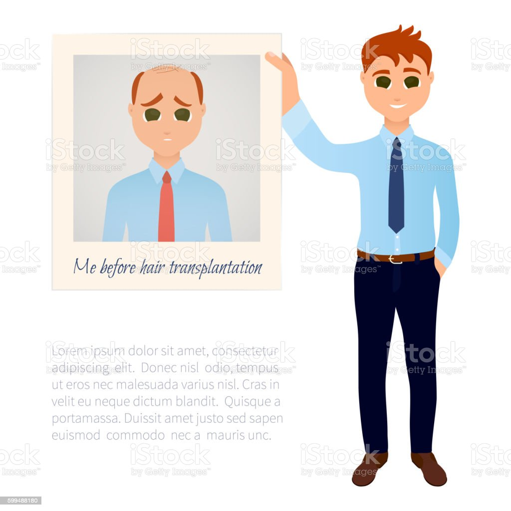 Hairloss and a photo vector art illustration