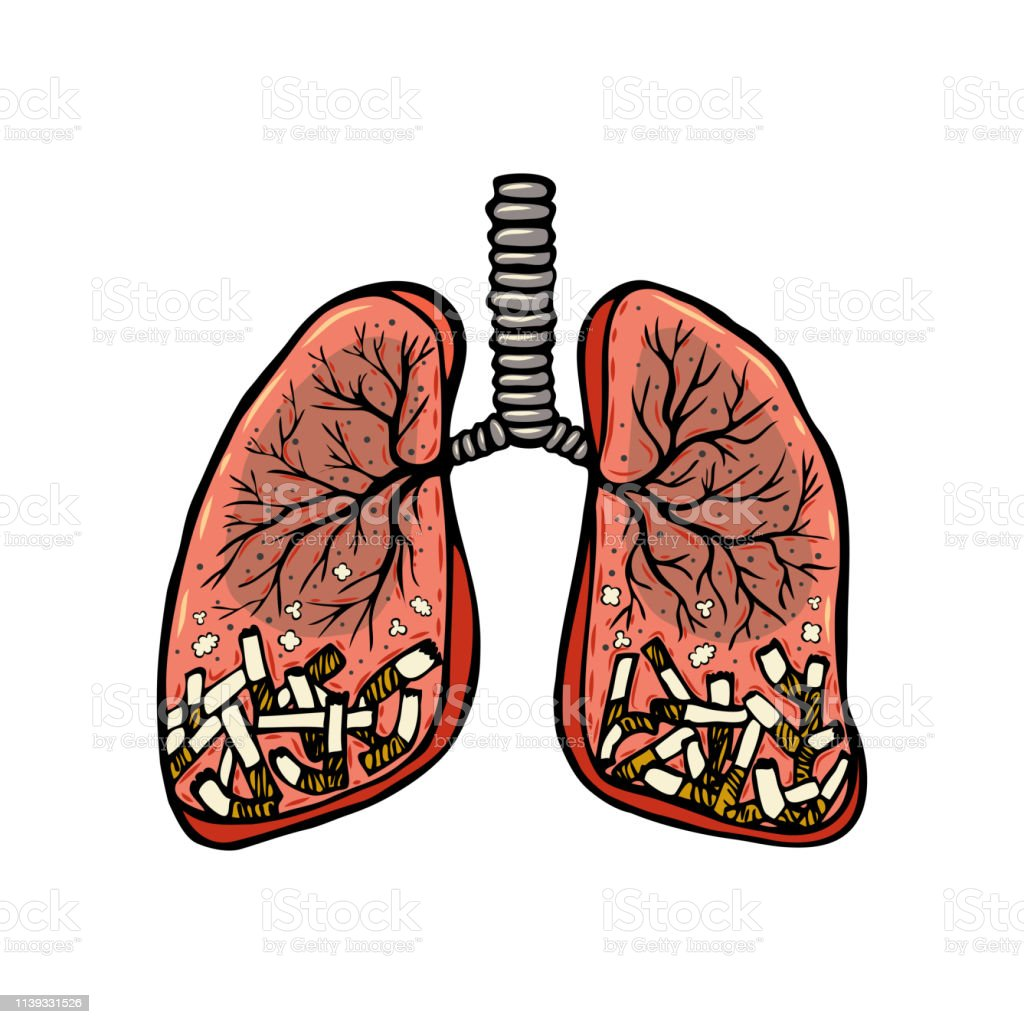 Hand drawn cigarettes in human lungs. Unhealthy habit smoking...