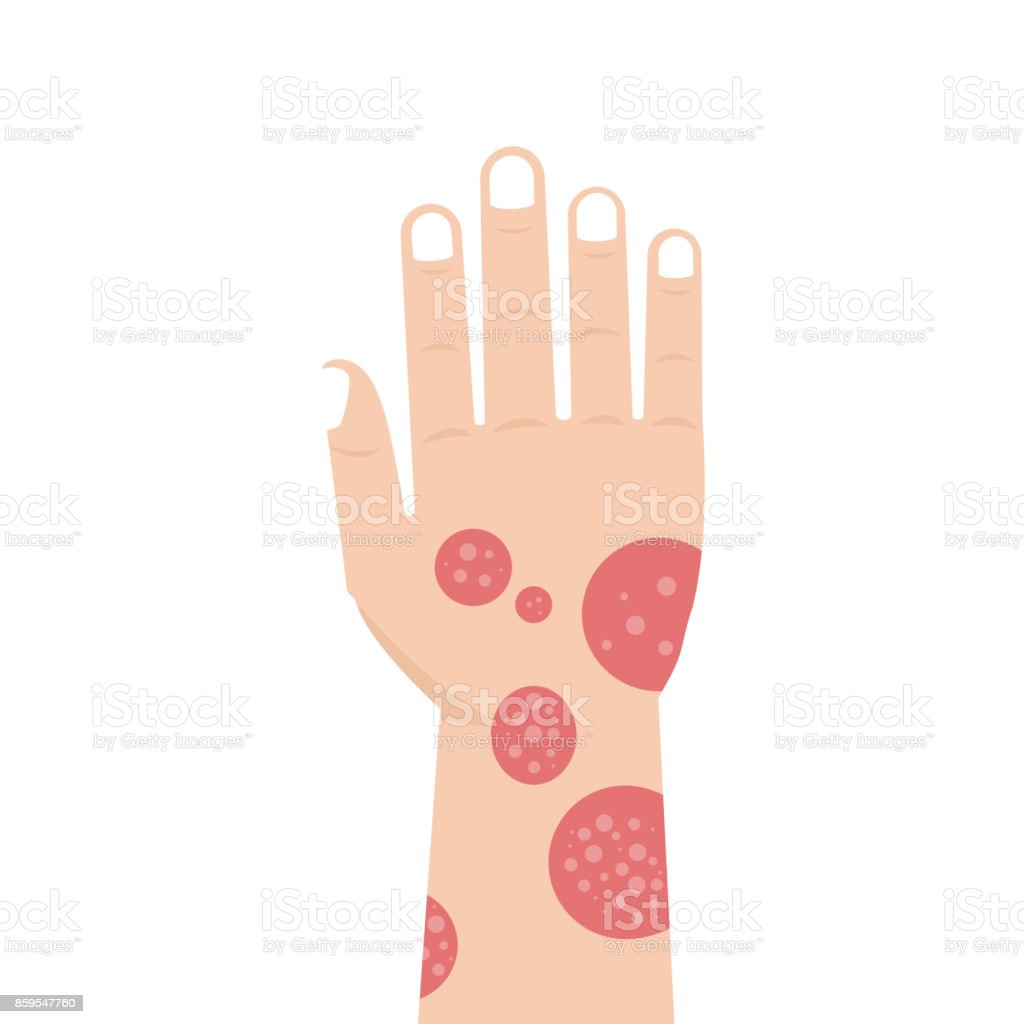 Hand with psoriasis or Eczema. Vector illustration. vector art illustration