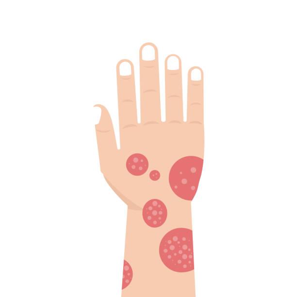 illustrazioni stock, clip art, cartoni animati e icone di tendenza di hand with psoriasis or eczema. vector illustration. - irritazione