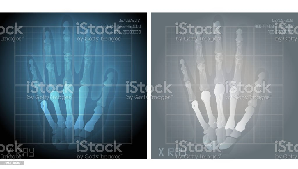 Hand X Ray royalty-free hand x ray stock vector art & more images of anatomy