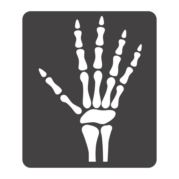 Hand X-ray glyph icon, medicine and healthcare, radiology sign vector graphics, a solid pattern on a white background, eps 10. Hand X-ray glyph icon, medicine and healthcare, radiology sign vector graphics, a solid pattern on a white background, eps 10. radiology stock illustrations