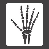 Hand X-ray glyph icon, medicine and healthcare, radiology sign vector graphics, a solid pattern on a black background, eps 10.