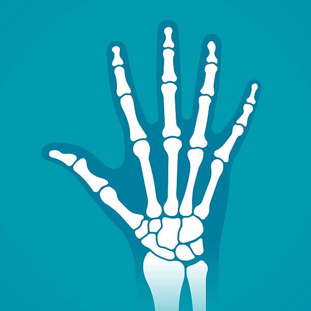 ilustrações, clipart, desenhos animados e ícones de raios x de mão - ortopedia