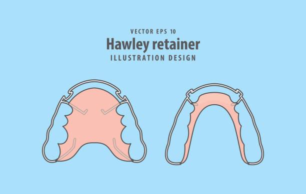 ilustraciones, imágenes clip art, dibujos animados e iconos de stock de vector de ilustración de retenedor hawley sobre fondo azul. concepto dental. - ortodoncista