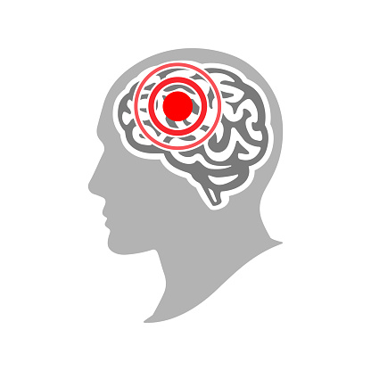 Headache and migraine concept. Silhouette of a human head with a headache. Brain disease. Vector illustration