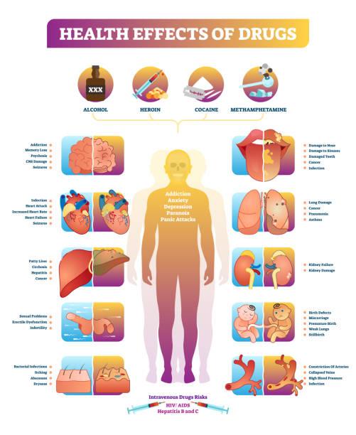 stockillustraties, clipart, cartoons en iconen met gezondheidseffecten van illegale drugs vector illustratie diagram. ziekte instellen. - amfetamine