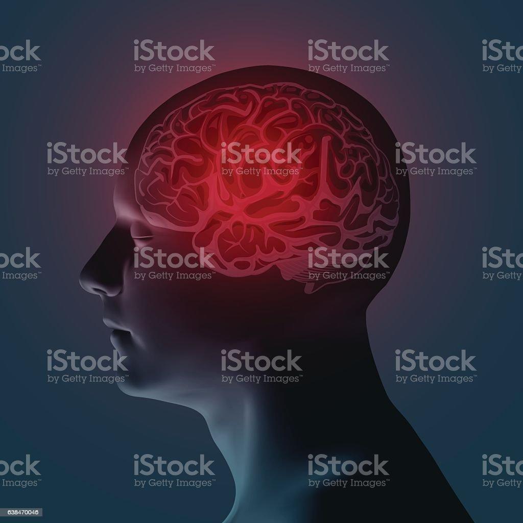Healthcare and migraine concept - vector illustration vector art illustration