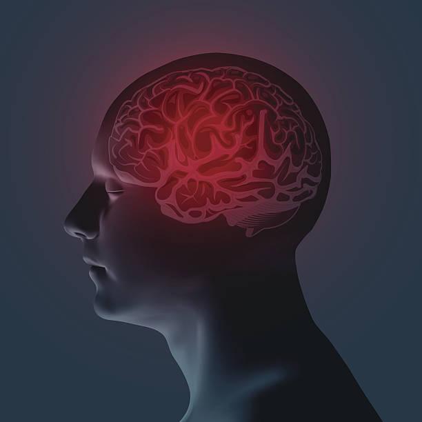 healthcare and migraine concept - vector illustration - kopfleuchten stock-grafiken, -clipart, -cartoons und -symbole