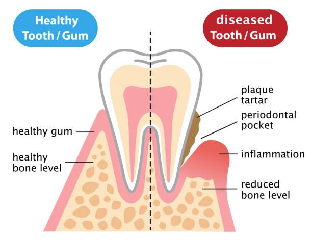 stockillustraties, clipart, cartoons en iconen met gezond en inflammatoire zieke kauwgom. tandheelkundige en gezondheidszorg concept - tandvleesontsteking