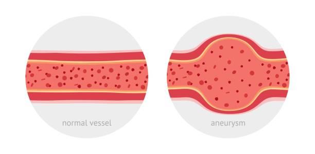 Healthy and sick aneurysm human vessel vector art illustration