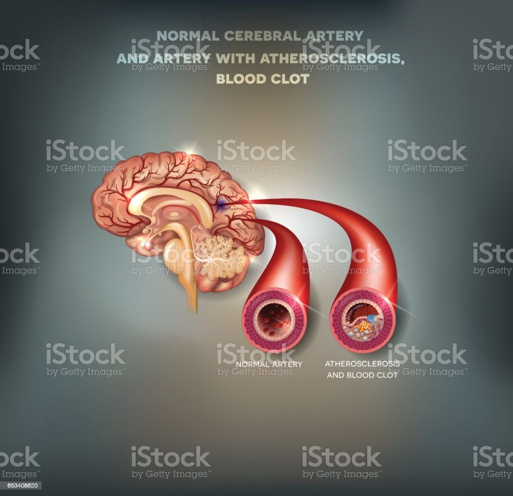 Healthy And Unhealthy Brain Arteries Stock Vector Art & More Images ...