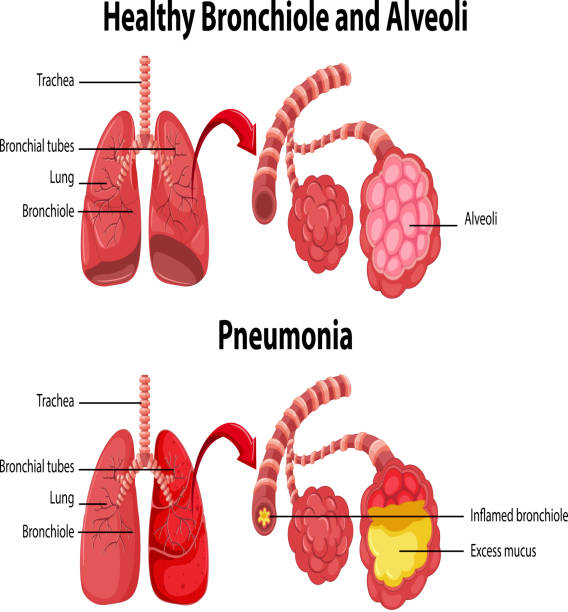 Healthy and unhealthy of human lungs Healthy and unhealthy of human lungs illustration alveolus stock illustrations