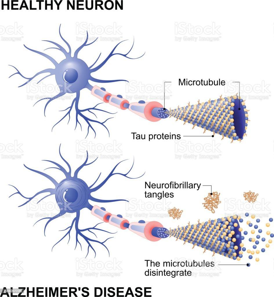 healthy cell and neurons with Alzheimer's disease. Tau hypothesis vector art illustration