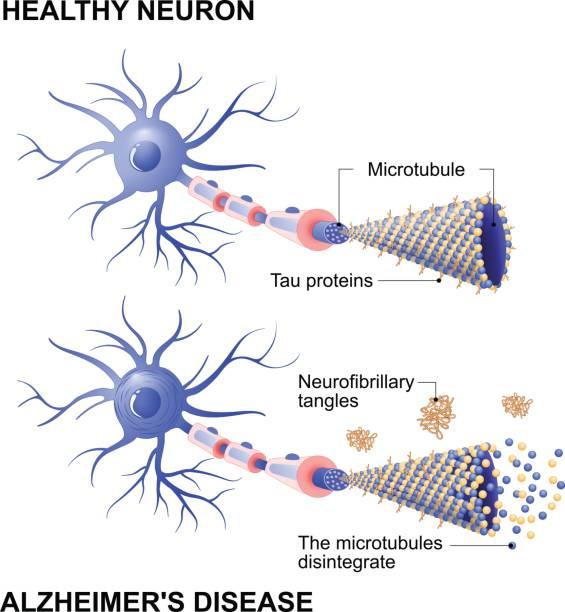 ilustrações de stock, clip art, desenhos animados e ícones de healthy cell and neurons with alzheimer's disease. tau hypothesis - alzheimer