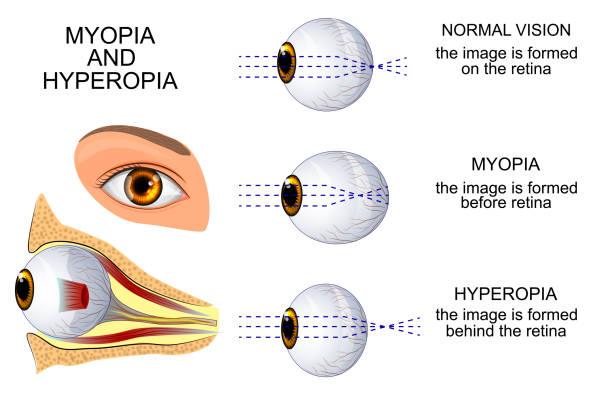 új a szemészetben mit kell enni, hogy jó látás legyen