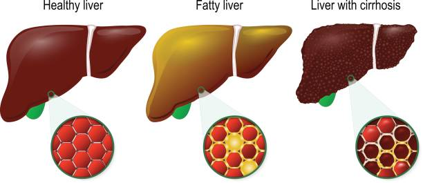 Healthy, fatty and cirrhosis of the liver vector art illustration