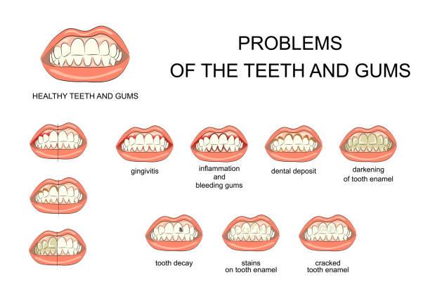 bildbanksillustrationer, clip art samt tecknat material och ikoner med friskt tandkött och tänder och munhåla sjukdomar - tandsten