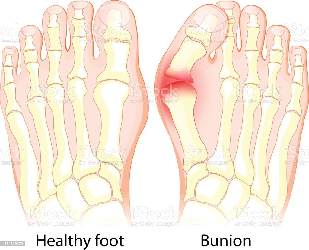 healthy joint  and bunion. vector art illustration