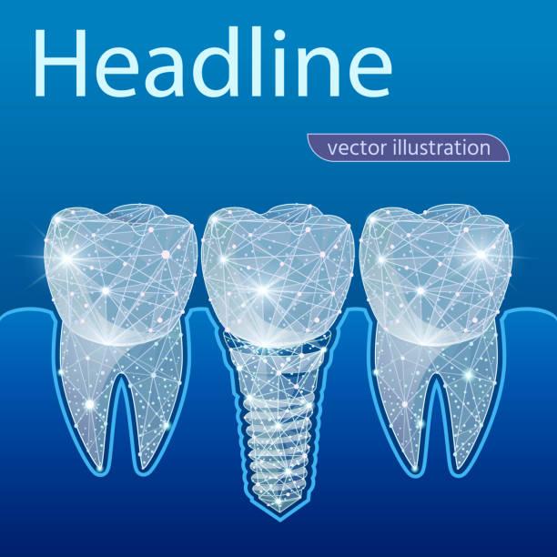 stockillustraties, clipart, cartoons en iconen met gezonde tanden en dental implant. tandheelkunde. implantatie van menselijke tanden. vectorillustratie - dentine