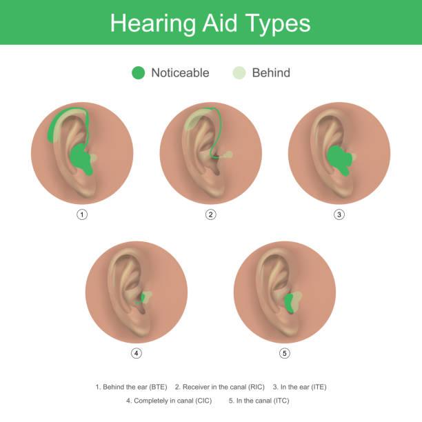 助聽器類型 - hearing aid 幅插畫檔、美工圖案、卡通及圖標