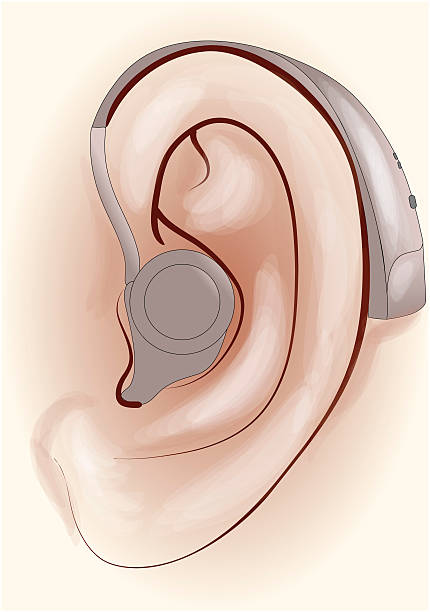 hearing aid - hearing aid 幅插畫檔、美工圖案、卡通及圖標