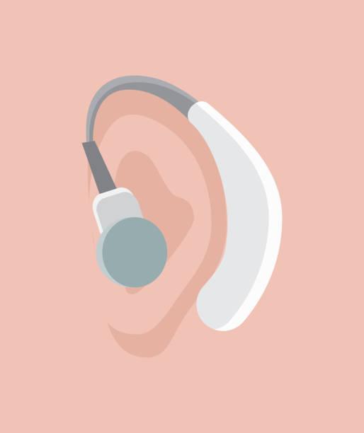 助聽器載體。世界聾人日在9月的最後一個星期日的概念。拉力賽、研討會和各種聾人意識運動設計應用程式,著陸頁 - hearing aid 幅插畫檔、美工圖案、卡通及圖標