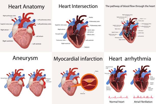 ilustrações de stock, clip art, desenhos animados e ícones de heart anatomy and types of heart disease vector illustration - coração humano