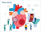 Heart attack infographic. Atherosclerosis medical banner. Healthcare concept. Miniature doctor nurse team and obese patient vector illustration. Blood vessel section with fatty deposit accumulation