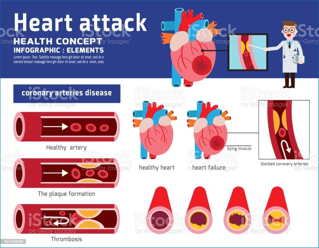 Heart attack infographic. Atherosclerosis medical illustration. Healthcare concept. healthy and damaged heart. blood vessel section with fatty deposit accumulation. Vector icon flat cartoon design vector art illustration