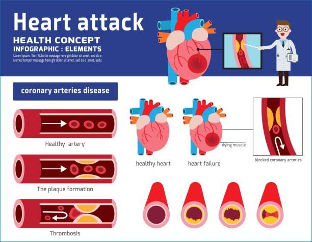ilustrações, clipart, desenhos animados e ícones de infográfico de ataque cardíaco. ilustrações médicas de aterosclerose. conceito de saúde. coração saudável e danificado. seção de vasos sanguíneos com acúmulo de depósitos gordurosos. projeto de plano dos desenhos animados de ícone de vetor - colesterol