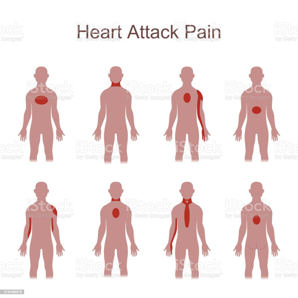 Heart attack pain location stock vector art more images of adult heart internal organ human brain myocardium germany adult heart attack pain location ccuart Choice Image
