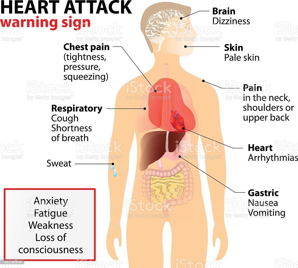 Heart attack symptoms vector art illustration