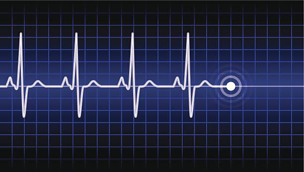Herzschlag Kurve