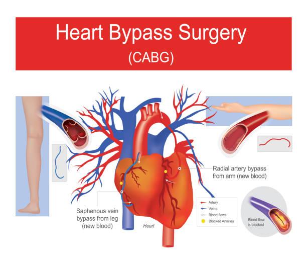 Heart bypass surgery. vector art illustration