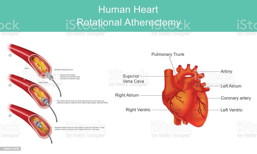 Herzdiamantangioplastie Stock Vektor Art und mehr Bilder von ...