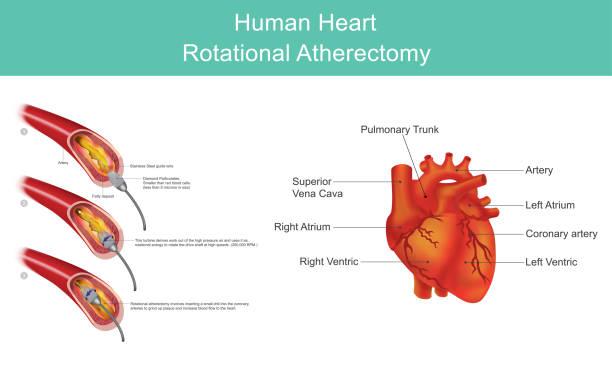 Heart Diamond Angioplasty vector art illustration