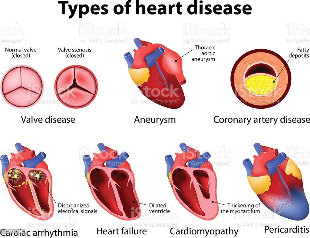 heart disease vector art illustration