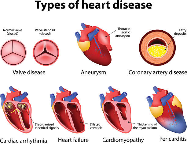 heart disease vector art illustration