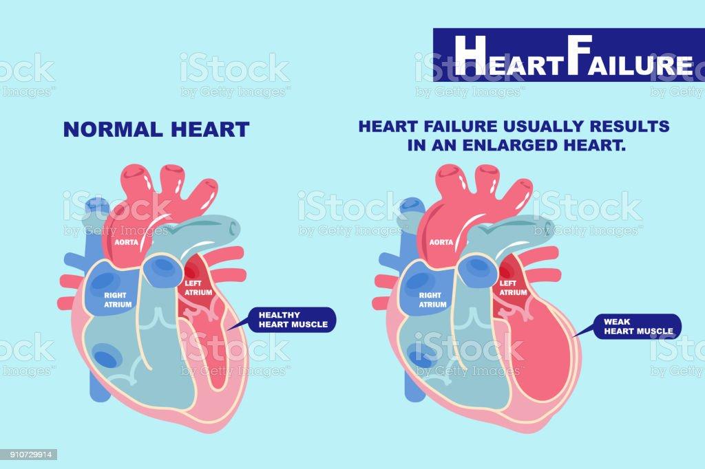 heart failure concept vector art illustration