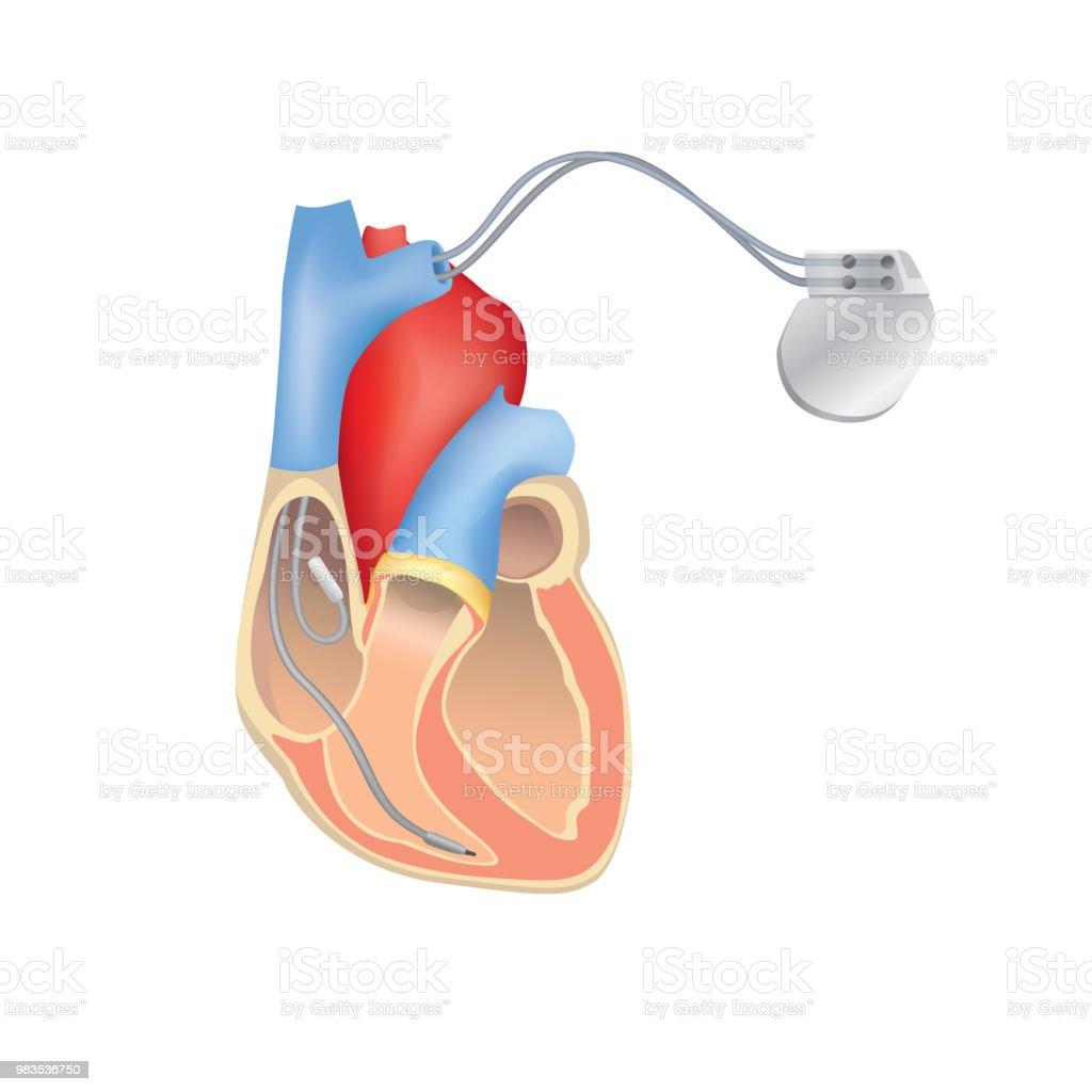 Herzschrittmacher In Arbeit Anatomie Des Menschlichen Herzens ...