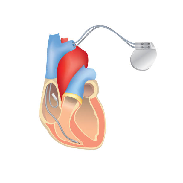 Heart pacemaker in work. Human heart anatomy cross section with working implantable cardioverter defibrillator. Heart pacemaker in work. Human heart anatomy cross section with working implantable cardioverter defibrillator. pacemaker stock illustrations