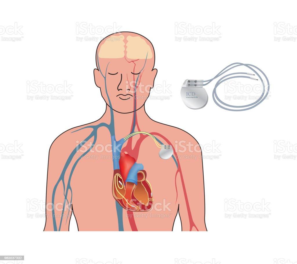 Heart Pacemaker In Work Human Heart Artificial Cardiac Icd Stock