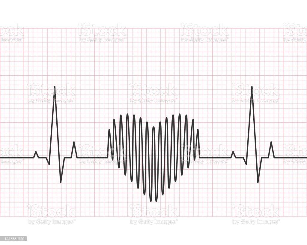 Heart Rate Line Electrocardiogram And Ecg Concept Stock Vector Art Diagram Electrocar Diogram Royalty Free