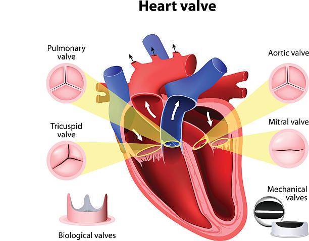 Heart valve surgery vector art illustration