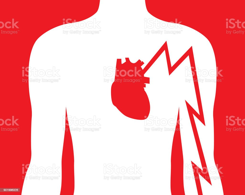 Hearts Attack Left Arm Pain vector art illustration
